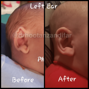 Left Ear Remolding Before and After