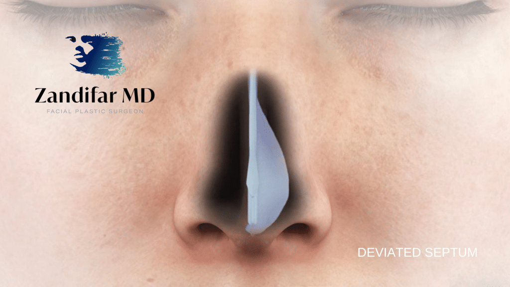 Digital Illustration of human nose with diagram of a deviated septum. Zandifar MD Logo with tagline facial plastic surgeon. Deviated septum is highlighted in black with white overlay illustration.