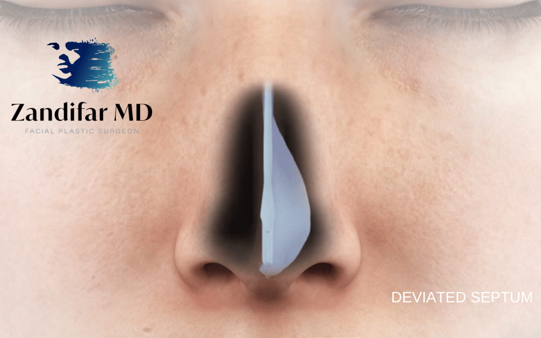 SIGNS YOU MAY HAVE A DEVIATED SEPTUM