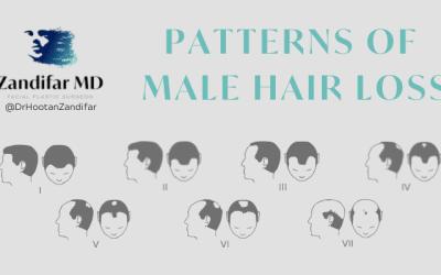 Patterns of Male Hair Loss with Dr. Hootan Zandifar