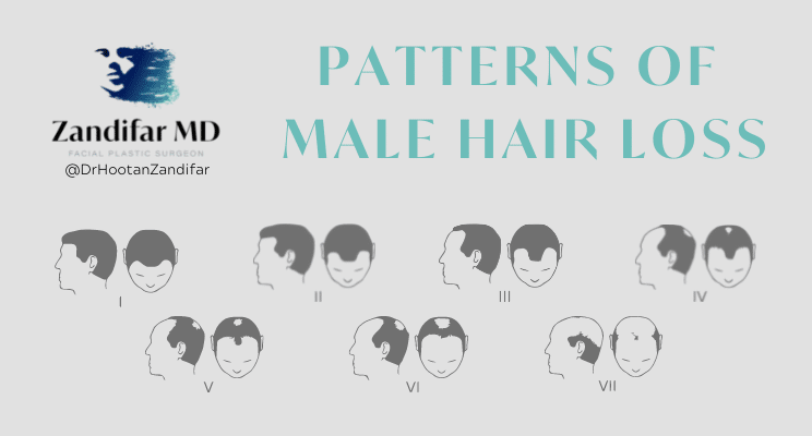 """Image with title """"Patterns of Male Hairloss"""" includes Zandifar MD Logo and social handle @DrHootanZandifar. Image depictions of Male Hairless according to the Norwodd Scale, starting with the hairline recession and progressing to a deep recession of the front and temporal hairline, as well as icons of back of the head male pattern baldness that grows and proceeds towards the front of the head."""