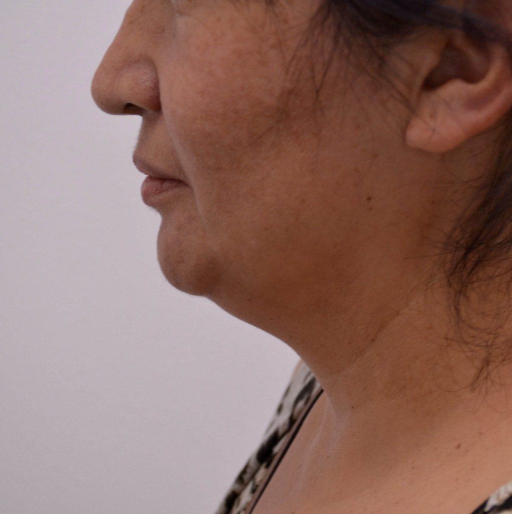 Facial Lipo Suction Before