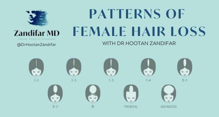 PATTERNS OF FEMALE HAIRLOSS