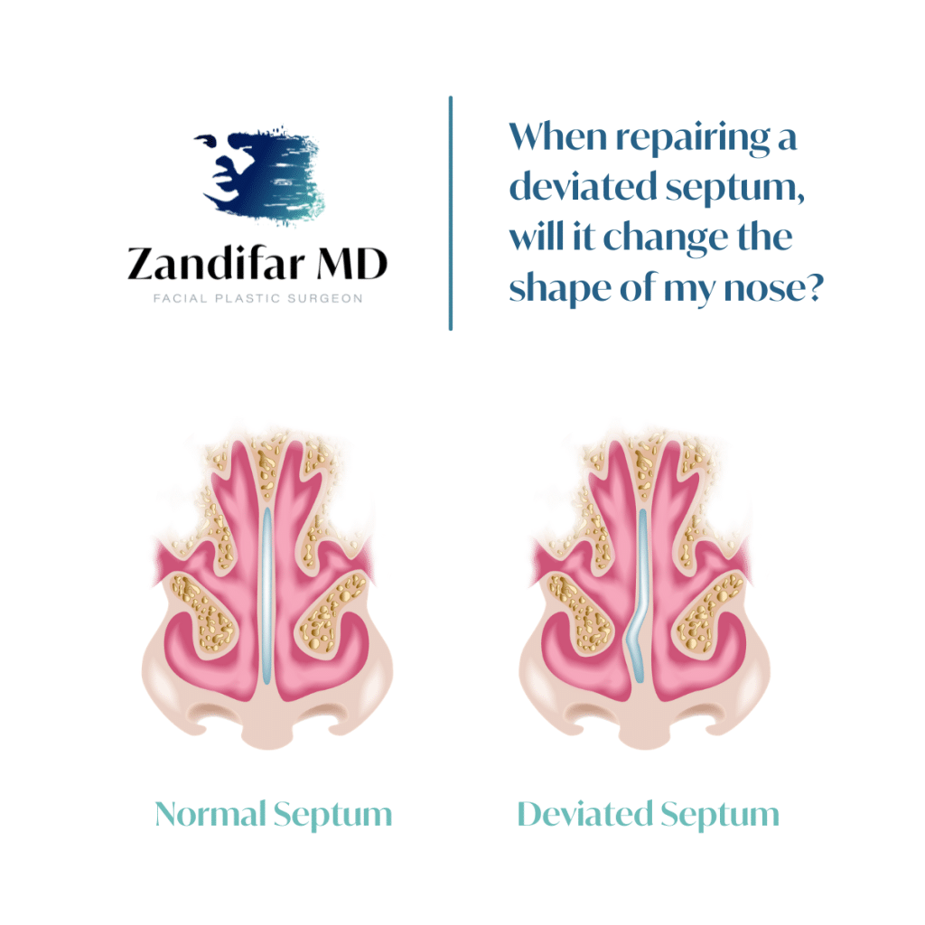 """White background with ZandifarMD Logo in upper right corner. Depicted logo includes a face with paint brush stroke with a gradient color fade from navy blue to light teal. Logo reads """"ZandifarMD"""" with the tagline that reads """"Facial Plastic Surgeon"""". QUOTE: reads When repairing a deviated septum, will it change the shape of my nose?"""" Image is a depiction of the inside of a nose showing a normal septum on the left and a deviated septum on the right."""