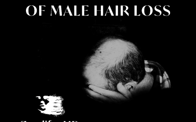 Primary Causes of Male Hairloss