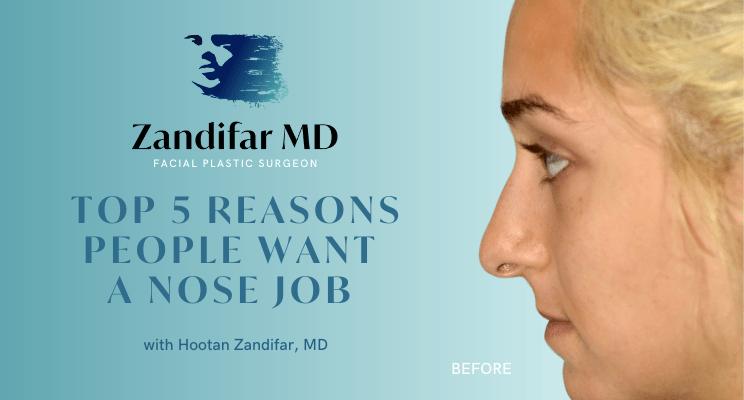 Top 5 Reasons People Get a Nose Job