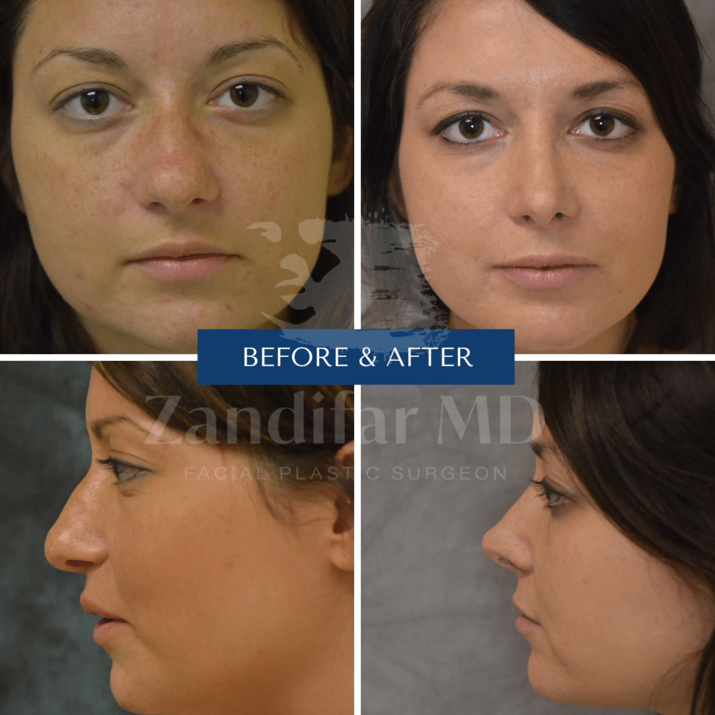 Before and After image of a Rhinoplasty patient