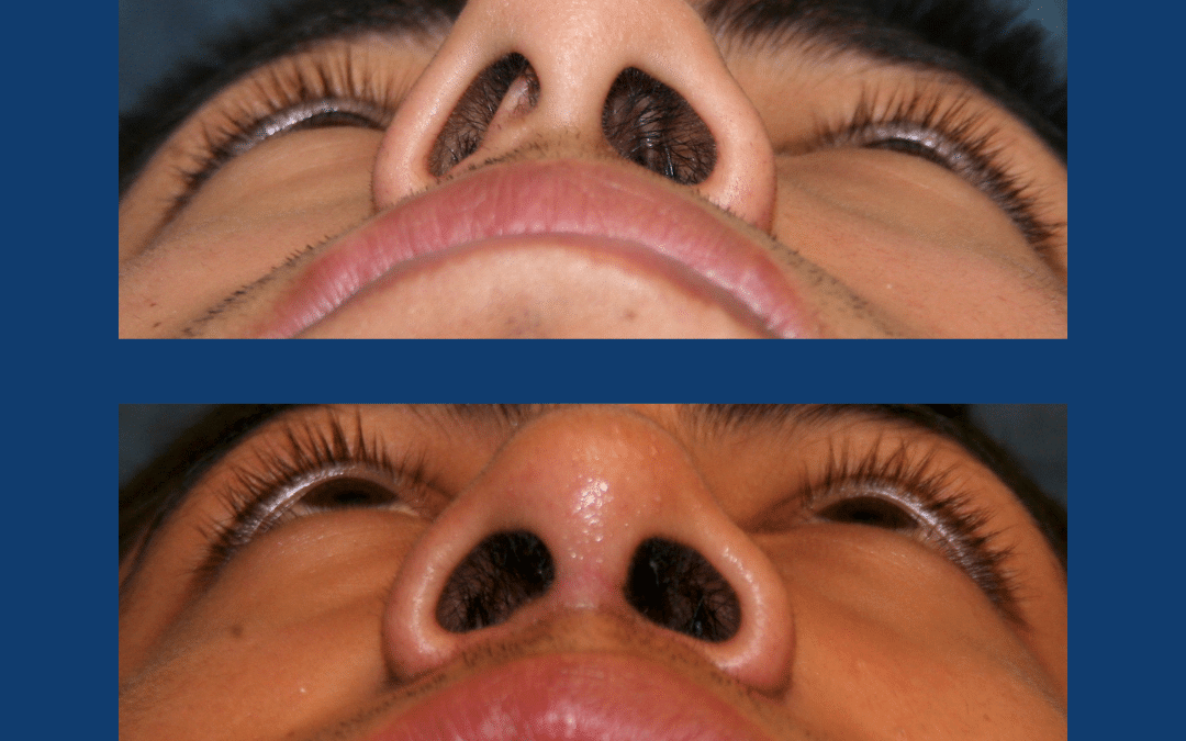 What is a Rhinoplasty?